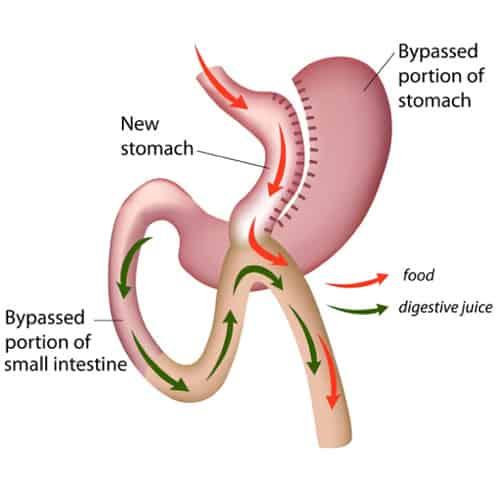 Weight Loss Bypass Surgery Stomach Bypass Surgery Procedures