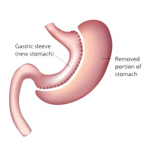 Weight Loss Options - vertical sleeve gastrectomy