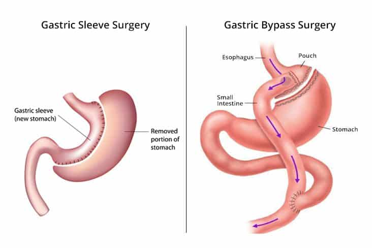 Gastric Sleeve Surgery Vs Gastric Bypass Surgery