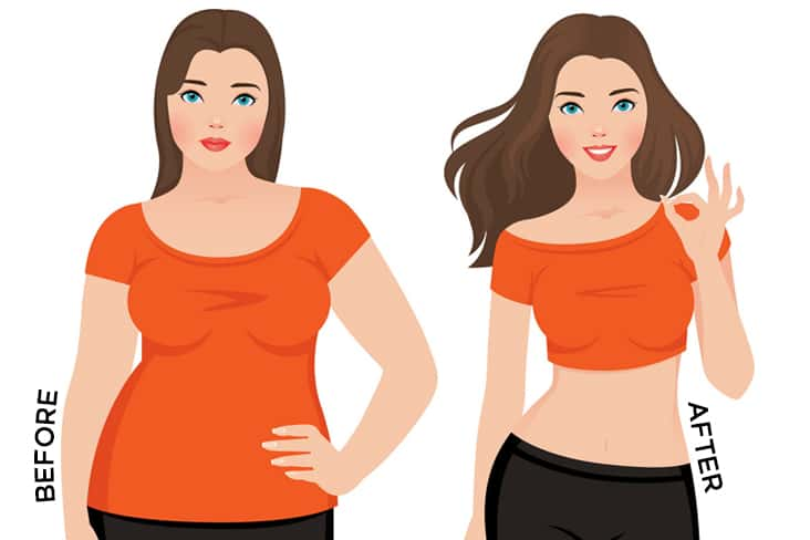 Weight Loss After Gastric Surgery